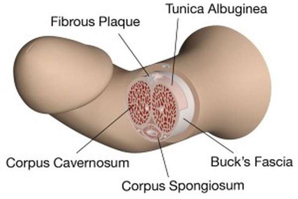 Bệnh Peyronie khiến dương vật thay đổi hình dạng hoặc bị biến dạng.